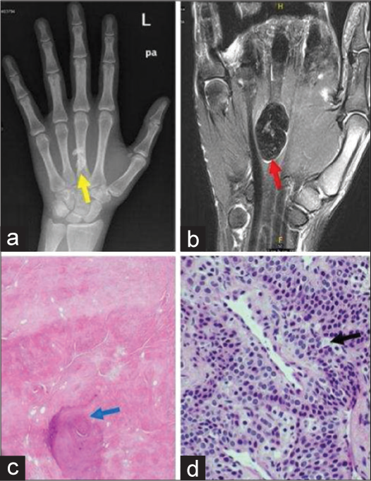 Journal of Clinical Imaging Science - Common Soft Tissue Tumors