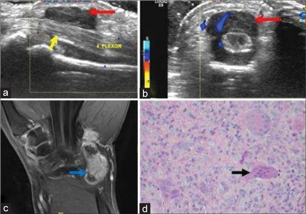 Journal of Clinical Imaging Science - Common Soft Tissue