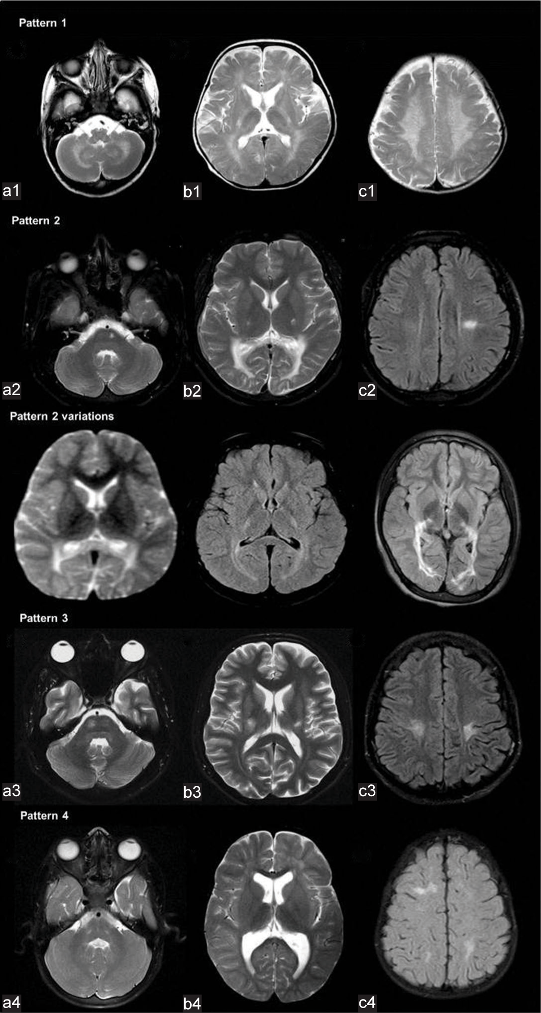 Journal of Clinical Imaging Science - Revisiting magnetic